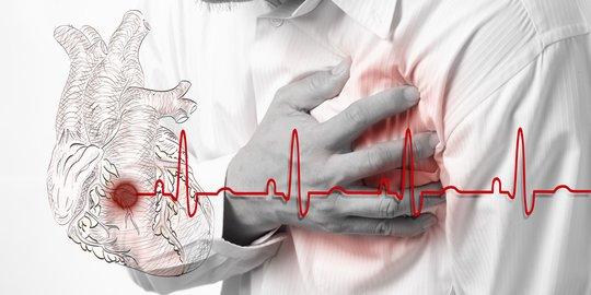 Hari Jantung Sedunia, RSUD Ponorogo Beri Tips Penangaanan Pertama Serangan Jantung